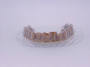 Denti_1